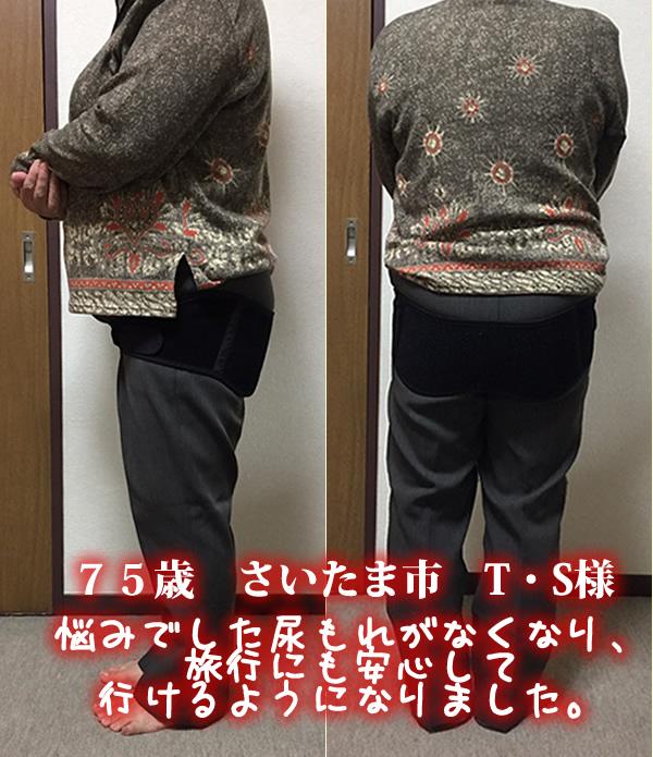 75歳女性 悩みでした尿もれがなくなり、旅行にも安心して行けるようになりました。